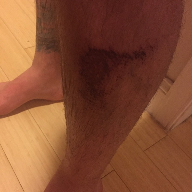 Thanks for the extremely painful road rash #bostonbikepolo #usobp